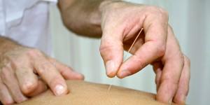 akupunktur_mot_hetetokter